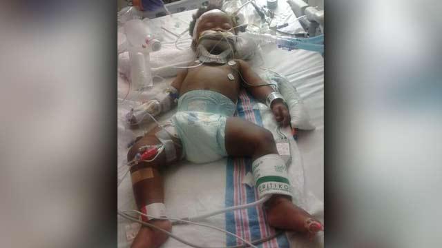 baby beaten into coma_207565