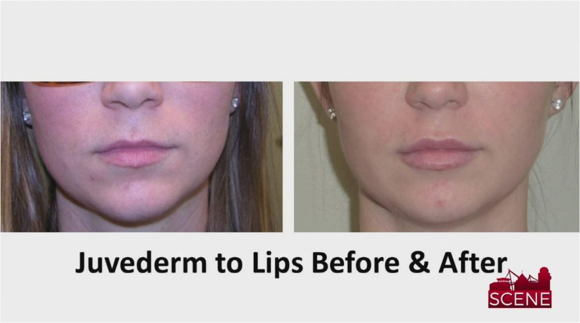 lips_415228