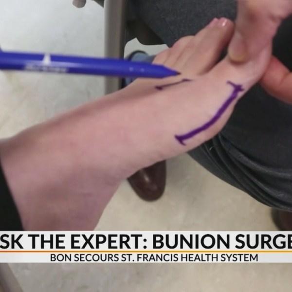 Ask the Expert Bunion Surgery