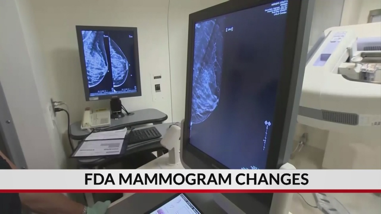 FDA proposes changes to mammogram standards for first time in decades