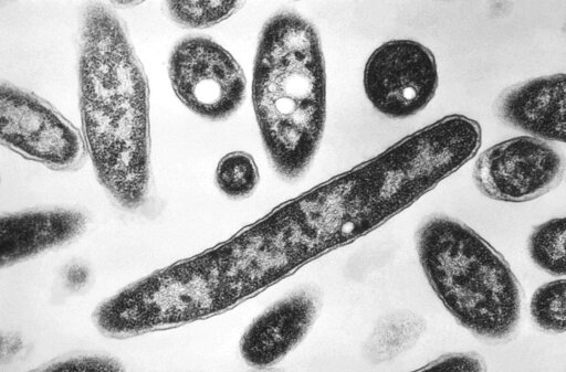 NC report: Hot tub water caused Legionnaire's outbreak