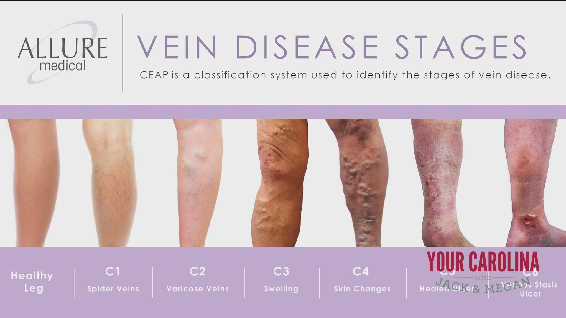 Allure Medical - Vein Disease
