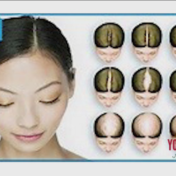 Work It Wednesday - Dealing With Hair Loss