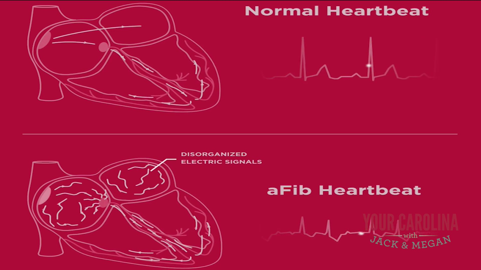 Bon Secours Upstate Cardiology - A.Fib