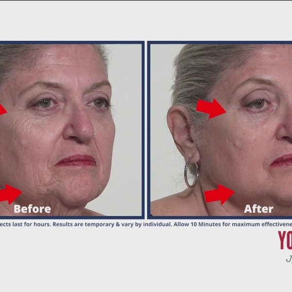Crows Feet Disappear With Plexaderm