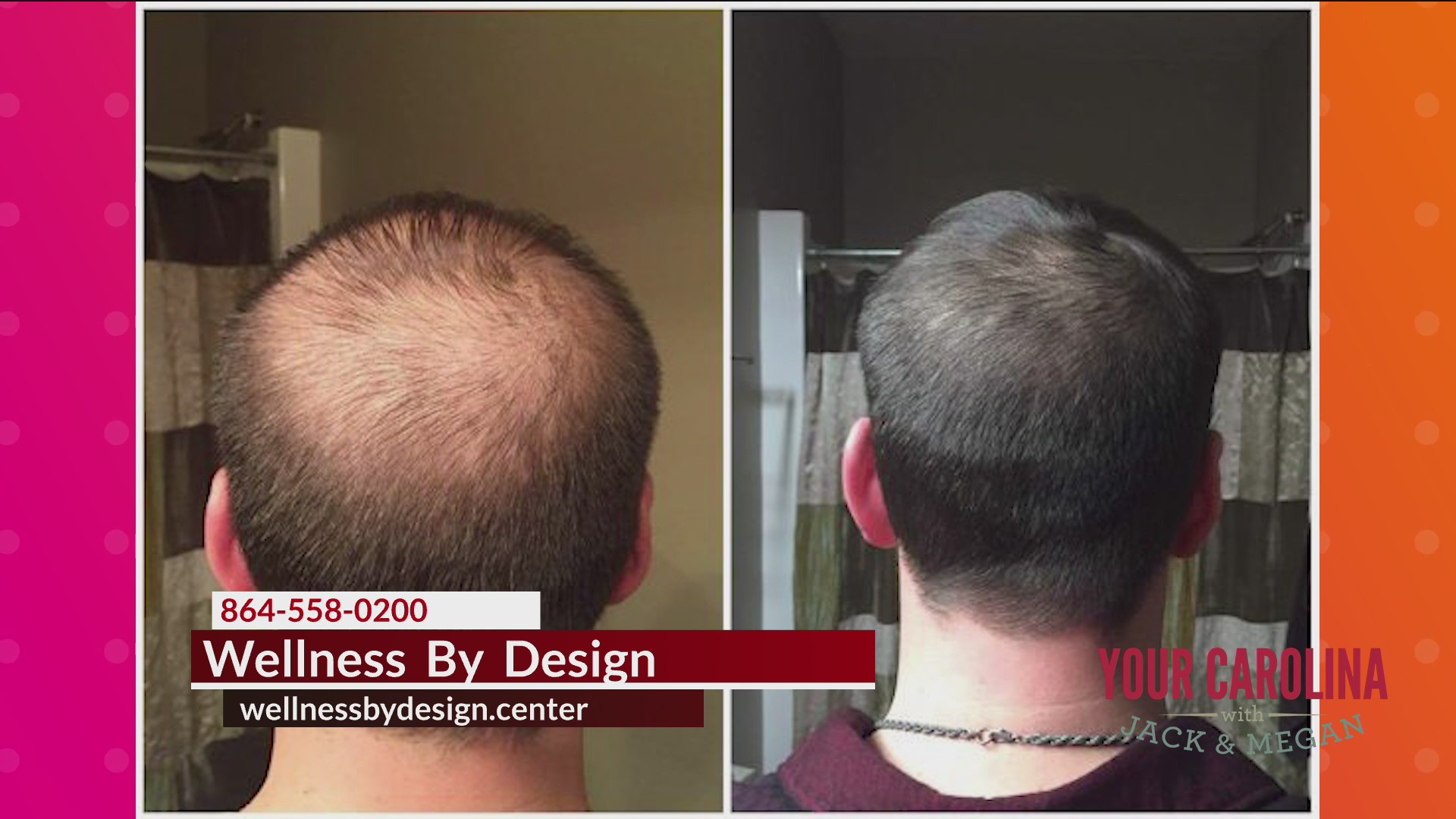Wellness By Design - Hair Restoration