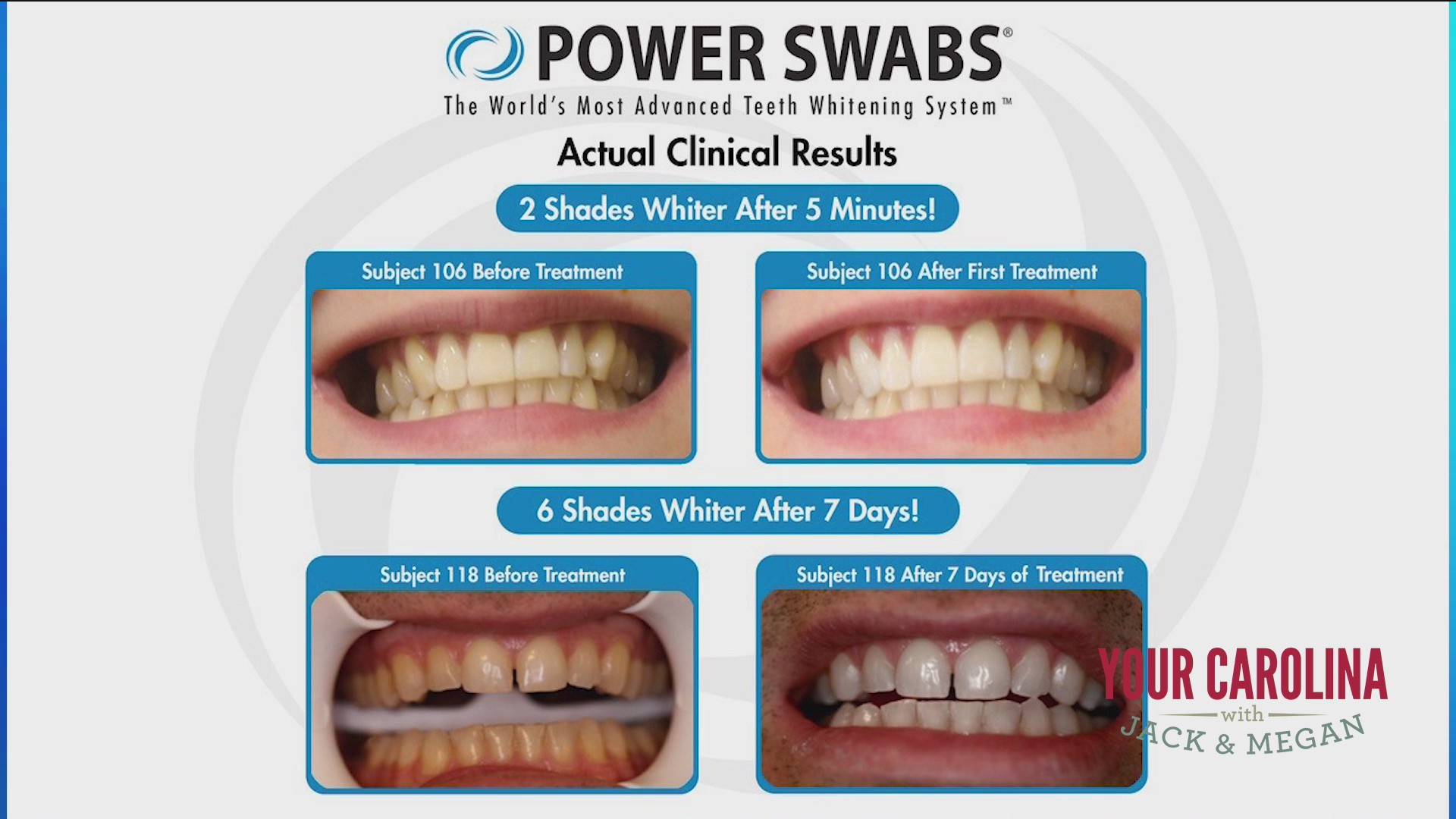 Five Minutes A Day Can Transform Your Smile With Power Swabs