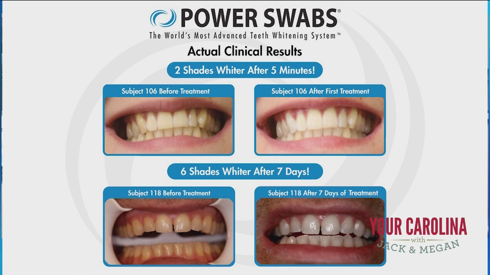 Whiter Teeth In 5 Minutes With Power Swabs