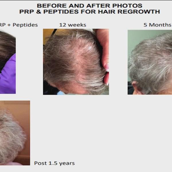 Forum Health Greenville - Hair Restoration